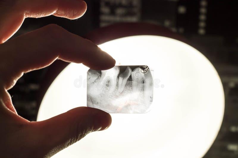 Une photo d'une dent malade dans la main contre la lumière photo libre de droits