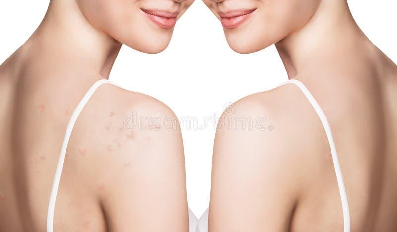 Ung kvinna med akne på behandling för skuldror före och efter arkivfoton