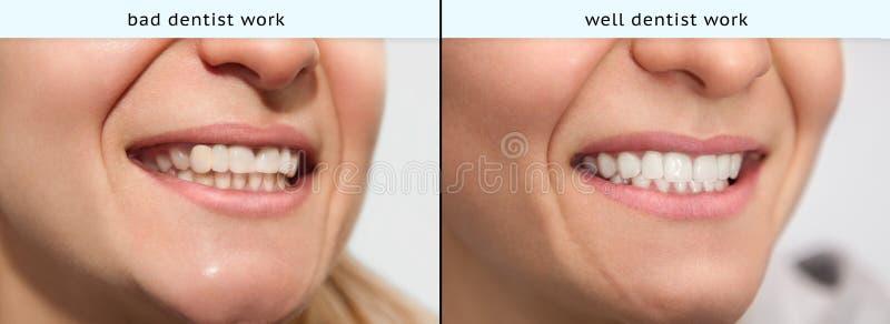 Ung kvinna med dåligt tandläkarearbete och väl tandläkarearbete royaltyfri bild