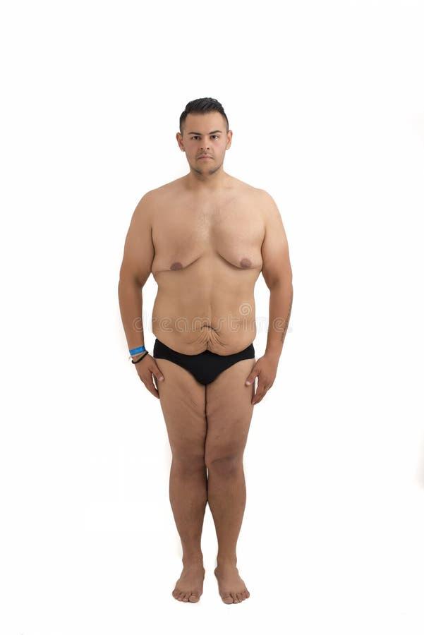 Ung man som borttappad vikt och överskott hud isolerade royaltyfri foto