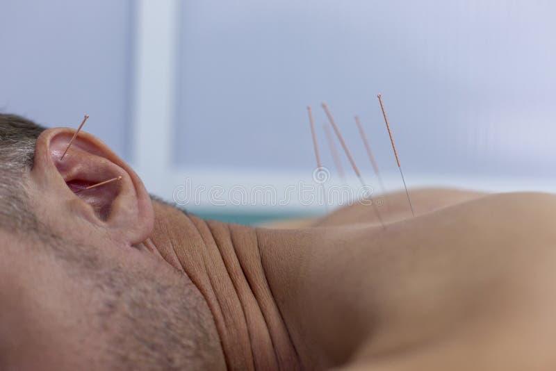Ung man som får akupunkturbehandling, closeupskott arkivbild