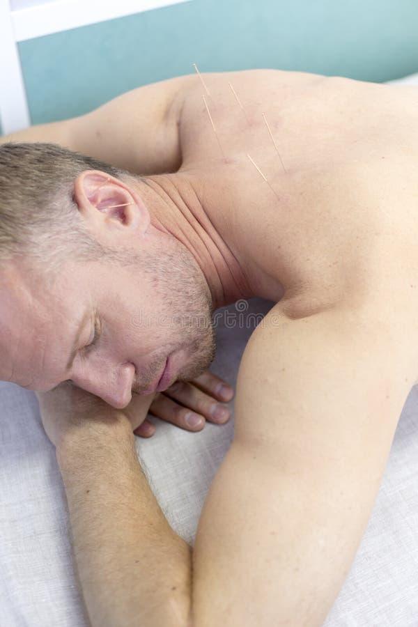 Ung man som får akupunkturbehandling på brunnsortmitten, closeup royaltyfri bild