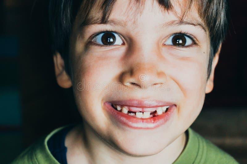 Ung pojke med saknat le för tänder arkivbilder