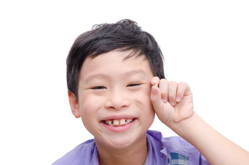 Ung pojke som förlorar hans tand fotografering för bildbyråer