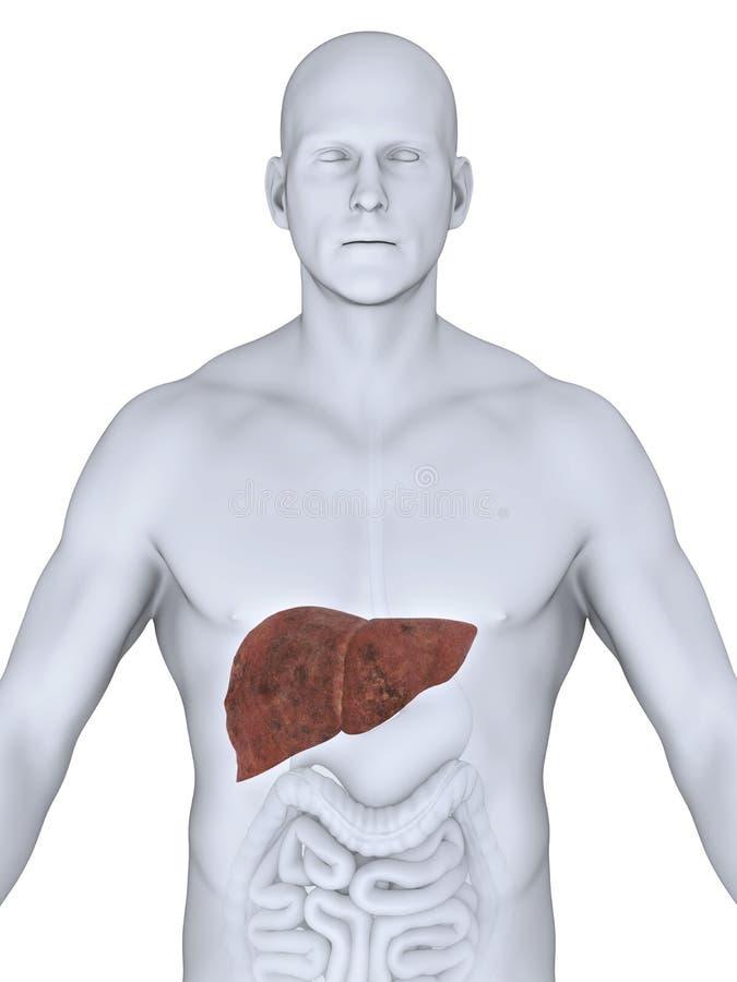 Ungesunde Leber-Anatomie stock abbildung. Illustration von gesund ...
