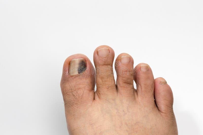 Unghia del piede nera e battuta su bianco fotografie stock libere da diritti