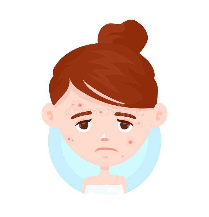 Unhappy teen girl struggling acne. Unhappy teen girl struggling with acne,pimples. Skin face problem concept. Vector modern flat style cartoon character vector illustration