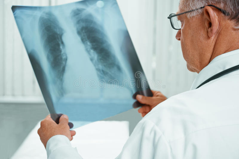 Unrecognizable older doctor is analyzing x-ray image. Unrecognizable older man doctor is analyzing x-ray image of lungs in a clinic royalty free stock image