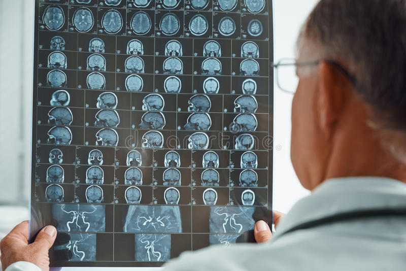 Unrecognizable older doctor examines MRI image. Unrecognizable older man doctor examines MRI image of human head in hospital stock photos