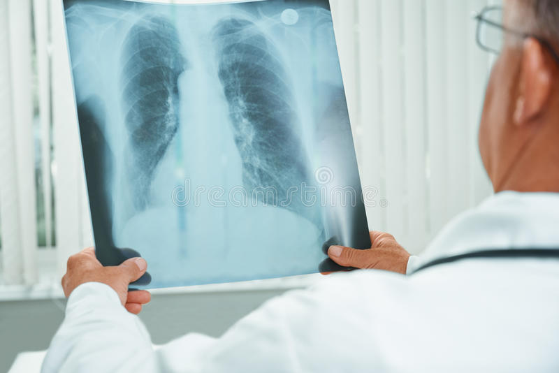 Unrecognizable older doctor examines x-ray image. Unrecognizable older man doctor examines x-ray image of lungs in a hospital royalty free stock photos