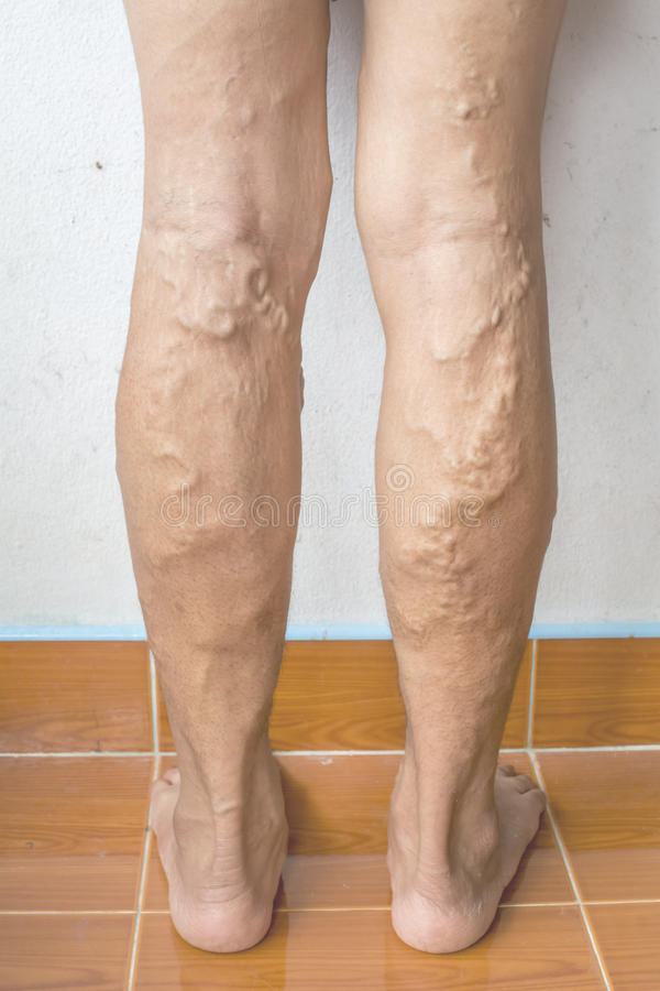 Unregelmäßige Krampfadern auf Frauenbeinen lizenzfreies stockfoto