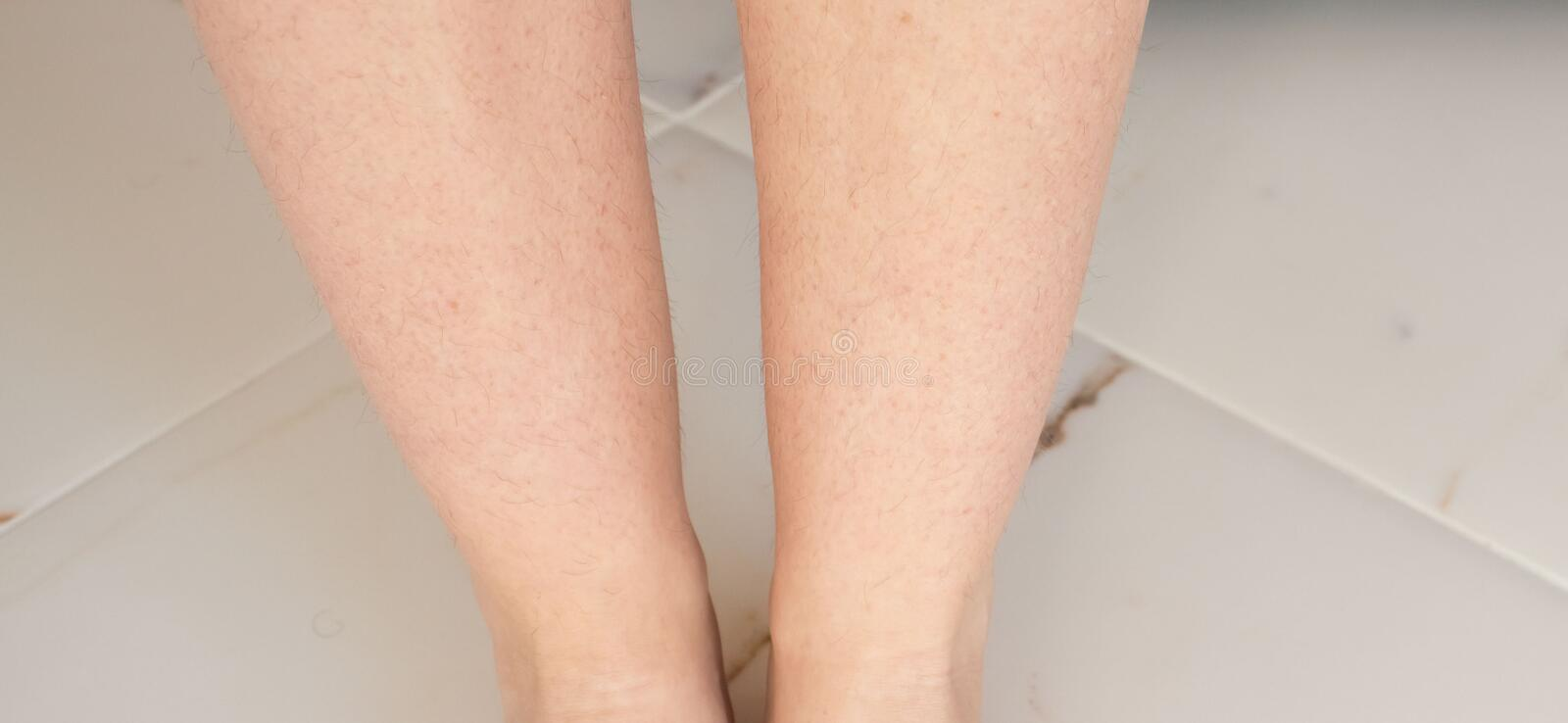 Do legs hairy why have women Why Don't