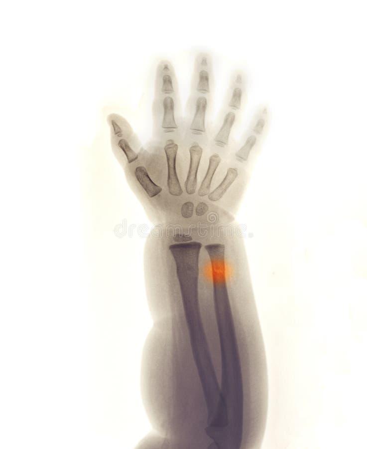 Unterarmröntgenstrahl, der Bruch des Radius und der Elle zeigt lizenzfreie stockfotos