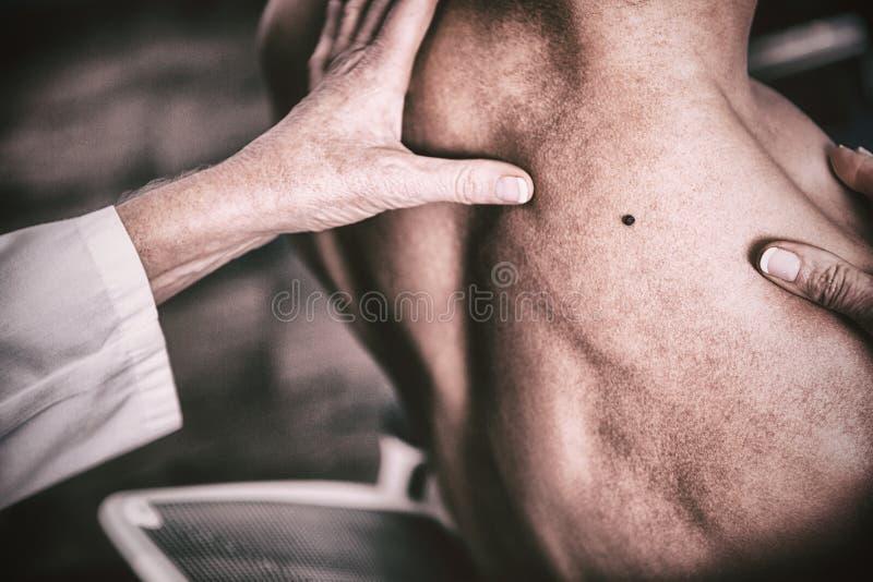 Untersuchungsmole des Dermatologen des Patienten lizenzfreies stockbild