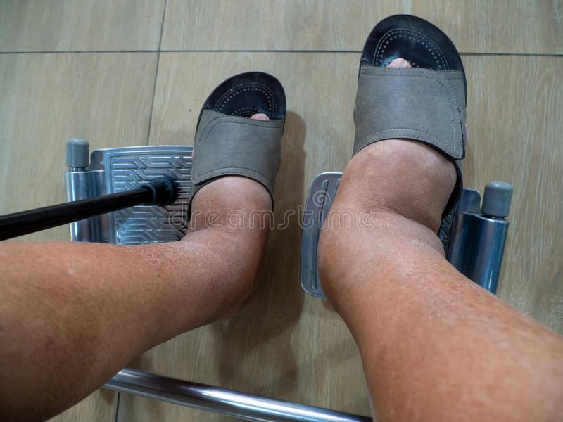Uomini con diabete e malattia renale con il gonfiore dei piedi Non può indossare le scarpe era in una sedia a rotelle nell'ospeda fotografia stock libera da diritti