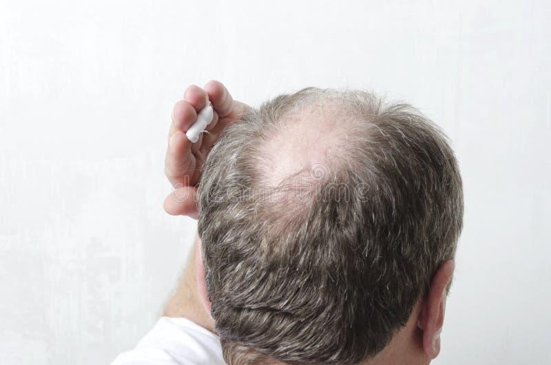 Uomo che applica crema speciale per crescita dei capelli Concetto della procedura di bellezza per cura di capelli fotografie stock libere da diritti