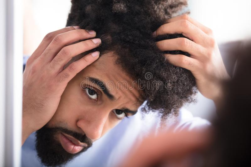 Uomo che esamina i suoi capelli immagini stock libere da diritti