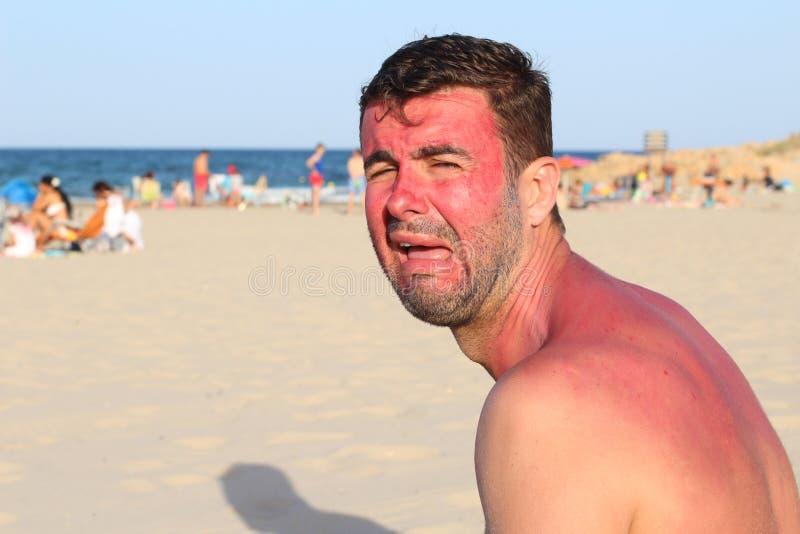 Uomo che grida dopo avere ottenuto bruciato sfrenatamente immagini stock libere da diritti