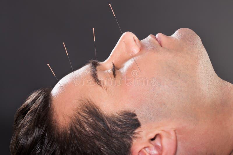 Uomo che subisce trattamento di agopuntura fotografie stock