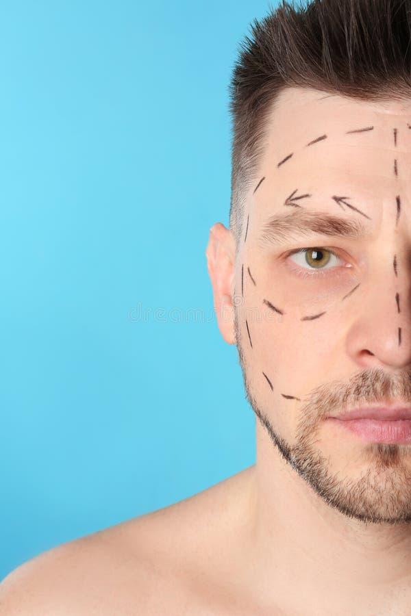 Uomo con i segni sul fronte per l'operazione della chirurgia estetica contro fondo blu fotografia stock
