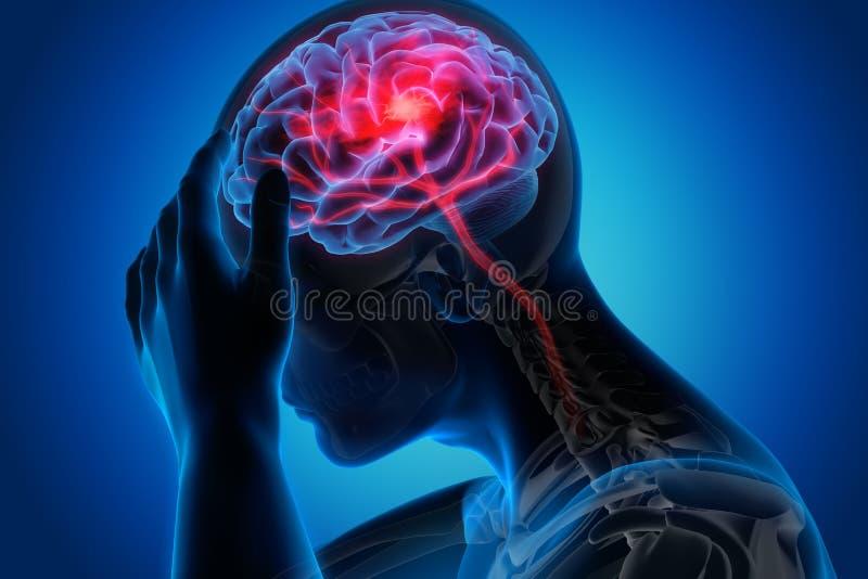 Uomo con i sintomi pesanti del colpo del cervello royalty illustrazione gratis