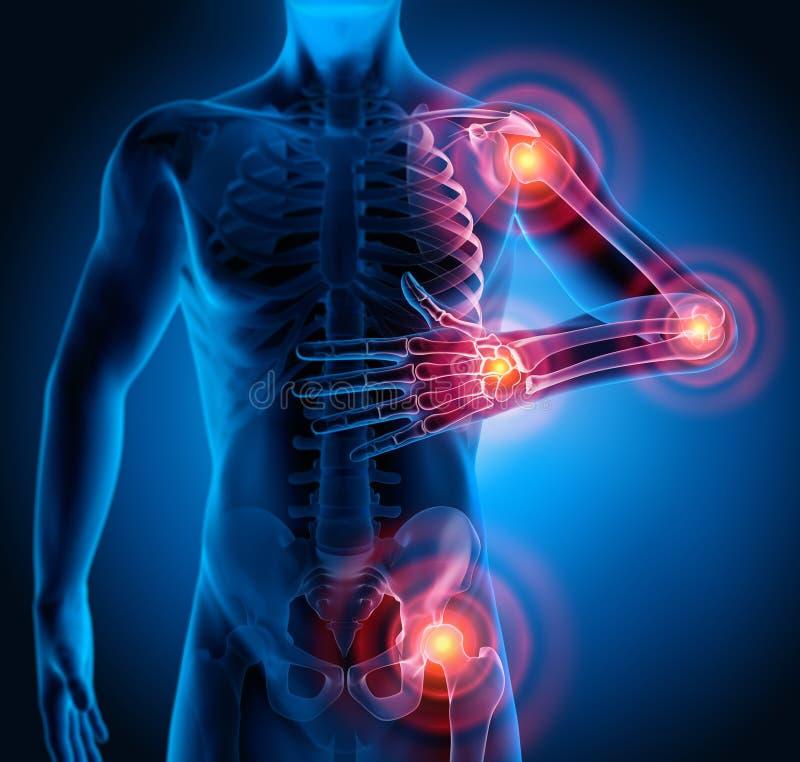Uomo con i sintomi pesanti di dolori articolari illustrazione vettoriale