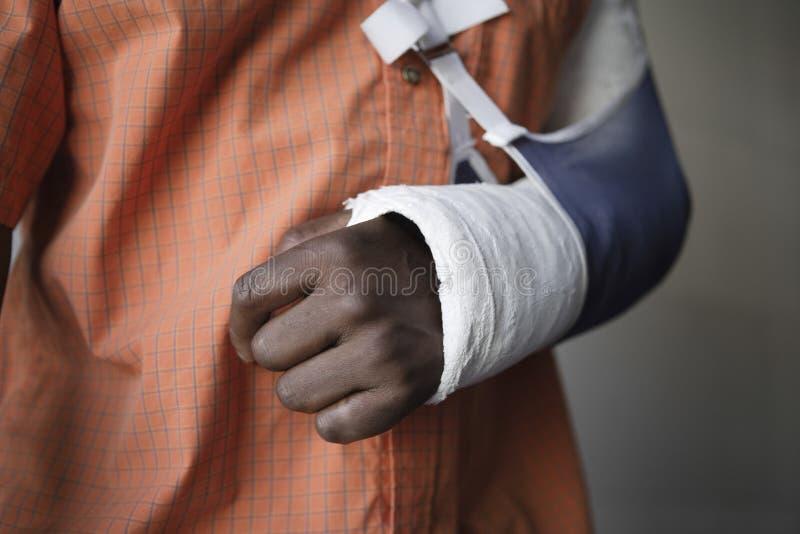 Uomo con il braccio rotto in colata fotografie stock libere da diritti