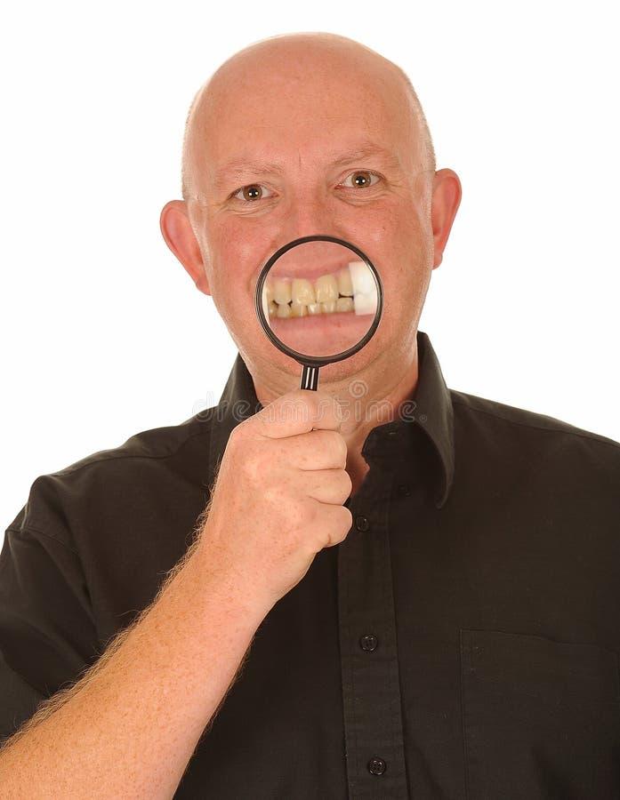 Uomo con il magnifier sui denti fotografie stock