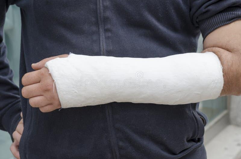 Uomo con il suo braccio rotto Braccio in colata fotografia stock libera da diritti