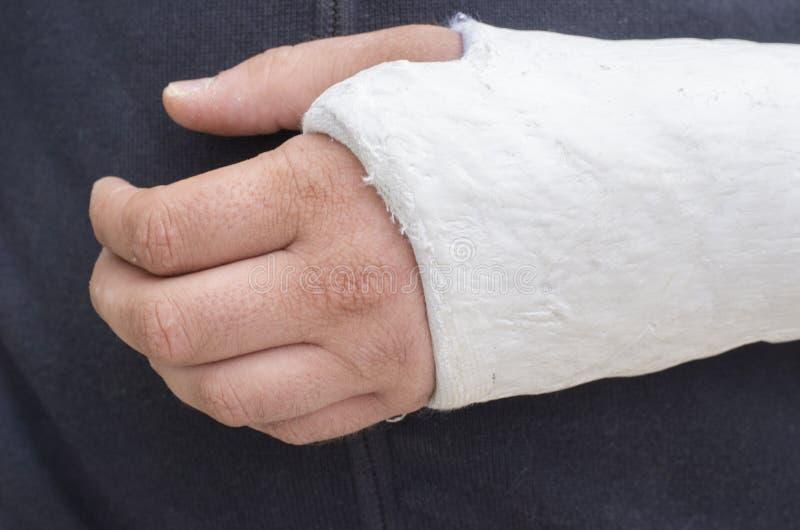 Uomo con il suo braccio rotto Braccio in colata immagini stock