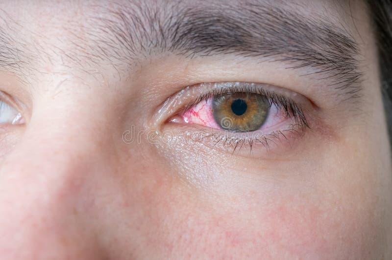 Uomo con l'occhio danneggiato rosso fotografia stock libera da diritti