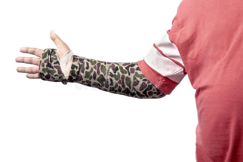 Uomo con la colata variopinta sul suo braccio rotto immagine stock