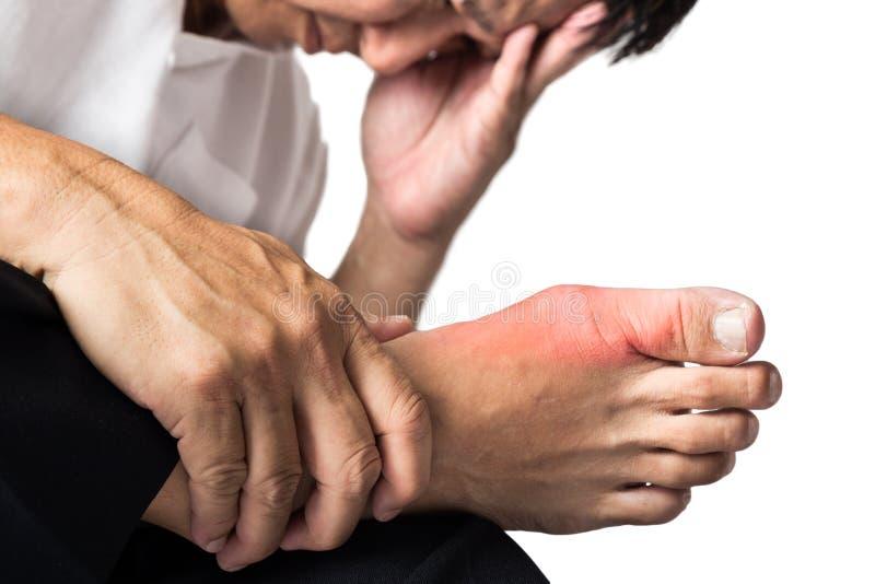 Uomo con la gotta dolorosa e infiammata sul suo piede, intorno all'area dell'alluce immagine stock