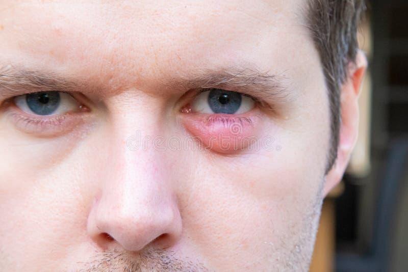 infezione oculare vescica ambrata