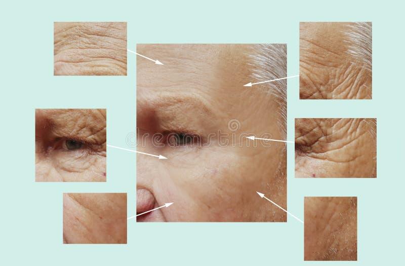 Uomo di vecchie grinze sul fronte prima dopo rimozione d'idratazione del collagene del riempitore della medicina di dermatologia  immagine stock libera da diritti