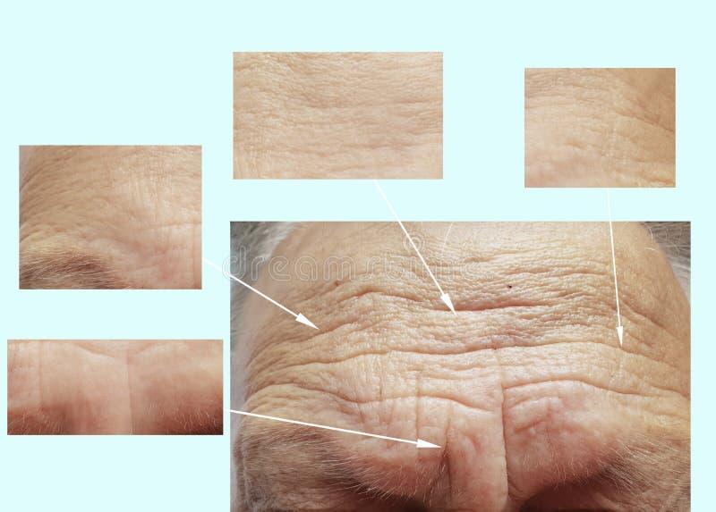 Uomo di vecchie grinze sul fronte prima dopo rimozione d'idratazione del collagene del riempitore della medicina di dermatologia  fotografia stock libera da diritti