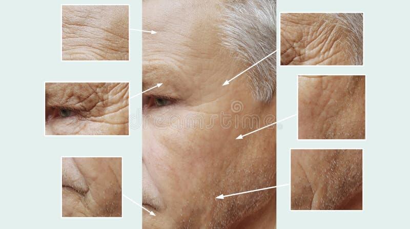 Uomo di vecchie grinze sul fronte prima e dopo rimozione d'idratazione del collagene del riempitore della medicina, procedure inv fotografie stock libere da diritti