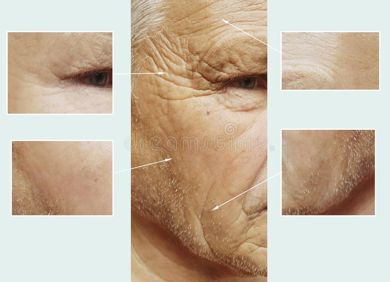 Uomo di vecchie grinze sul fronte prima e dopo rimozione d'idratazione del collagene del riempitore della medicina di salute, pro fotografia stock