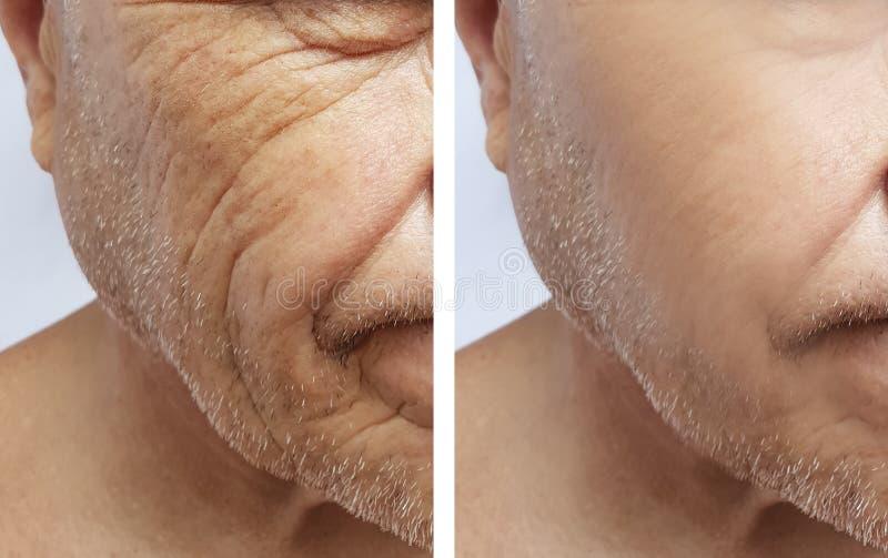 Uomo di vecchie grinze sul fronte prima e dopo rimozione d'idratazione, procedure invecchianti fotografie stock