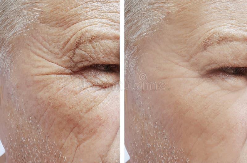 Uomo di vecchie grinze sul fronte prima e dopo rimozione, procedure invecchianti fotografia stock libera da diritti