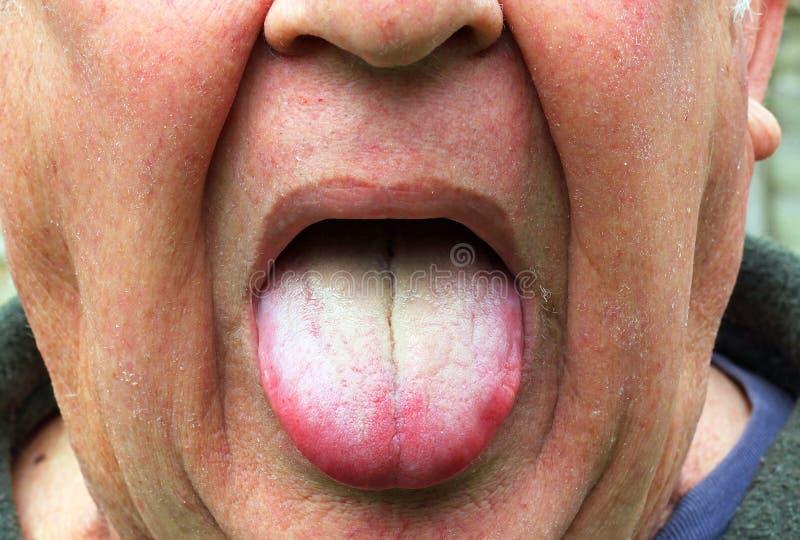 Uomo malato o malato, lingua gialla rivestita immagine stock libera da diritti