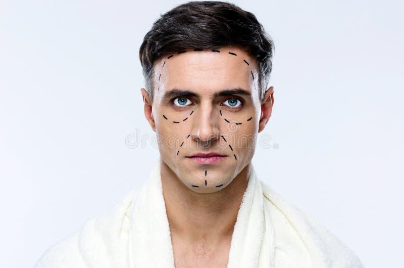 Uomo segnato con le linee per chirurgia plastica fotografia stock libera da diritti