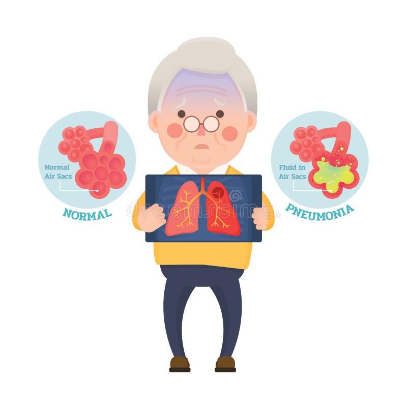 Uomo senior che ha polmonite illustrazione vettoriale