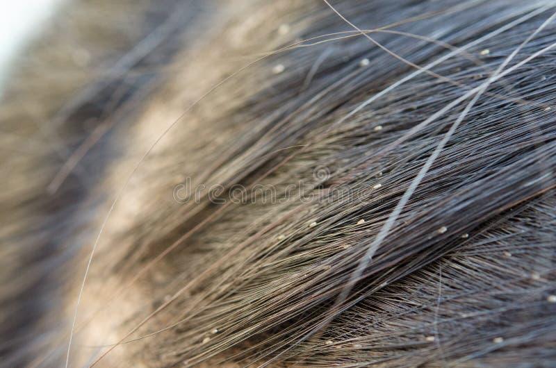 Uovo del pidocchio sui capelli fotografia stock