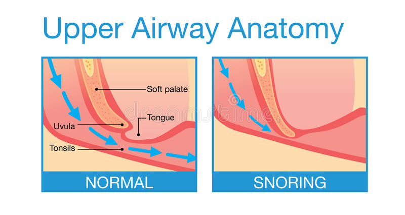 Upper Airway Human Anatomy In Sleeping Stock Vector - Illustration ...