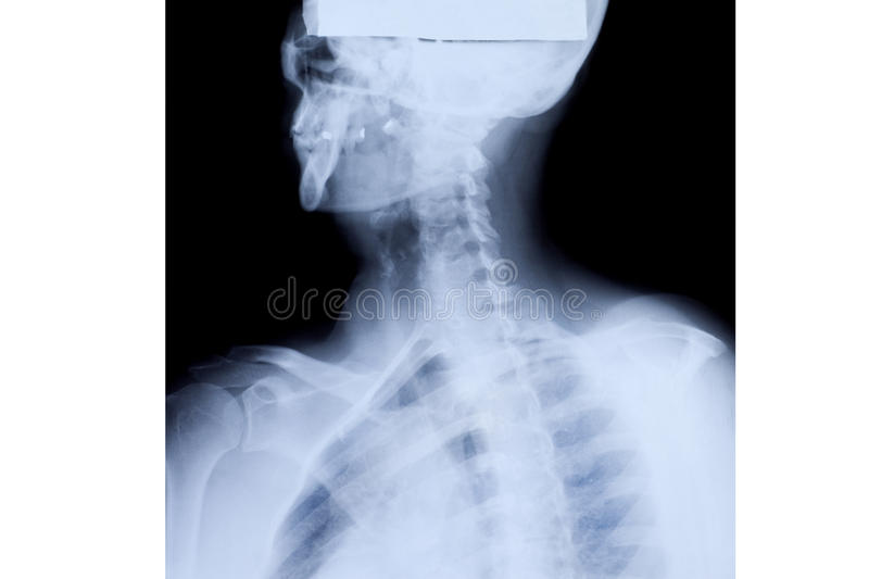 Upper Body X-ray. X-ray of the mature woman upper body stock images