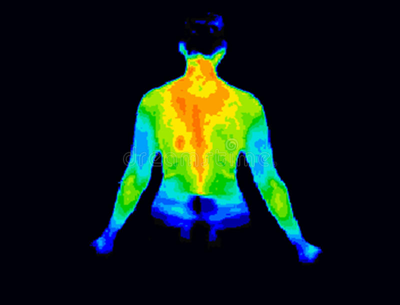 Upper body thermography. Thermographic image of the back of the upper body showing different temperature in a range of colors from blue showing cold to red royalty free stock photo