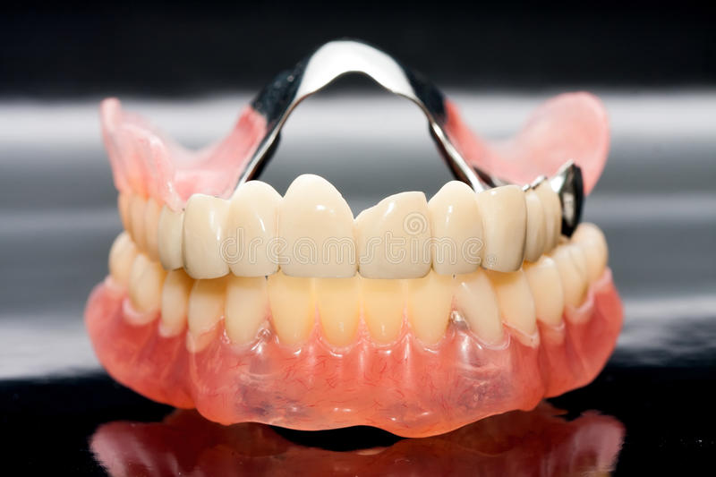 Dental prosthesis. Upper and lower dental prosthesis stock photography