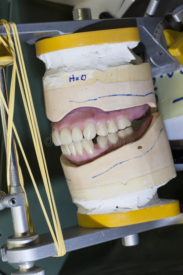 Download Upper And Lower Teeth Red Braces On Gypsum Modell Stock Photo - Image of biting, equipment: 39506958