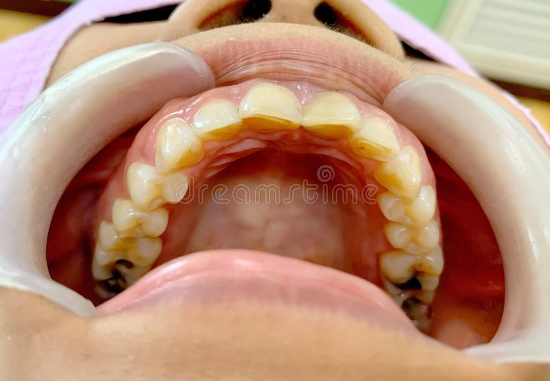 The upper teeth with many decayed teeth and mouth gag. Upper teeth with many decayed teeth and mouth gag royalty free stock images